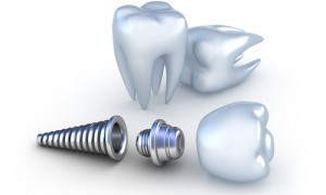 Dental Implants Help Prevent Complications