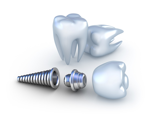 3-d rendering of three teeth and a dental implant post