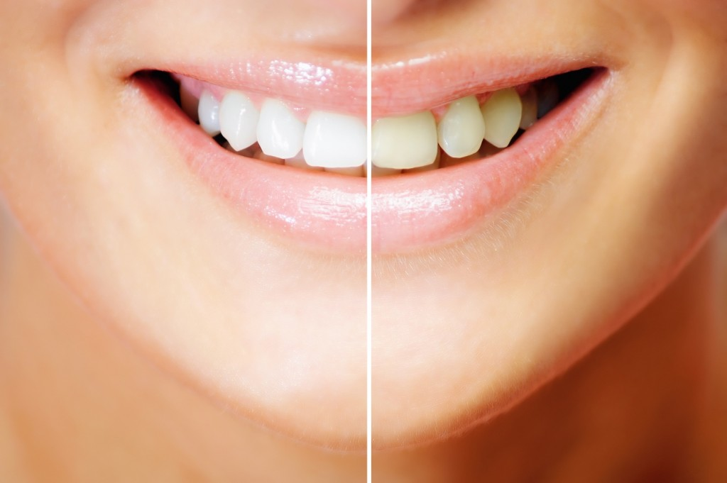 Close up of a split picture before and after of a woman's smiling mouth