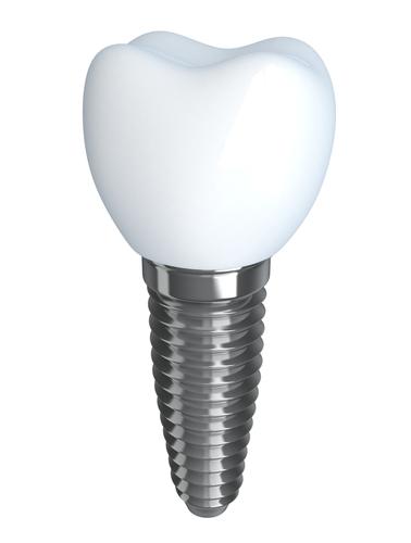 a single tooth with a screw bottom
