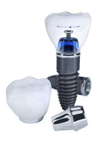 3-D rendering of dental implants with crown and posts