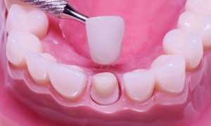 Close up of mouth with a single dental implant tooth being placed on base