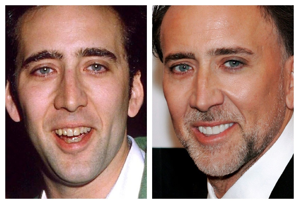 Actor Nicolas Cage's before and after veneers