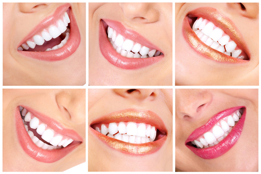 Mouth restoration dentist Las Vegas