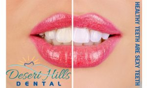 Answers To Your Most Frequently Asked Questions about Teeth Whitening