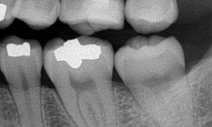 x-ray of teeth with dental fillings