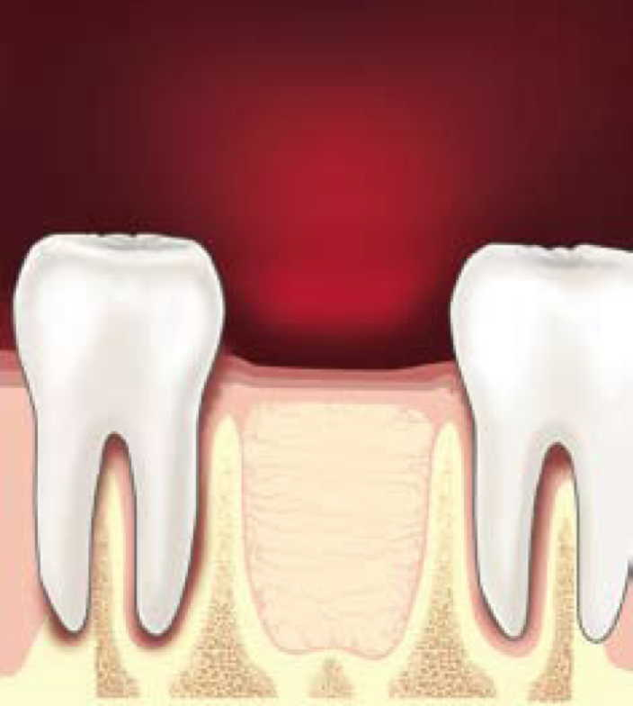 Las Vegas tooth extractions