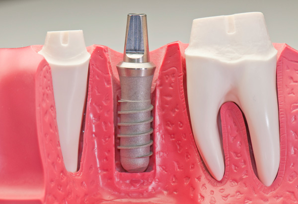 Dental implants in Las Vegas