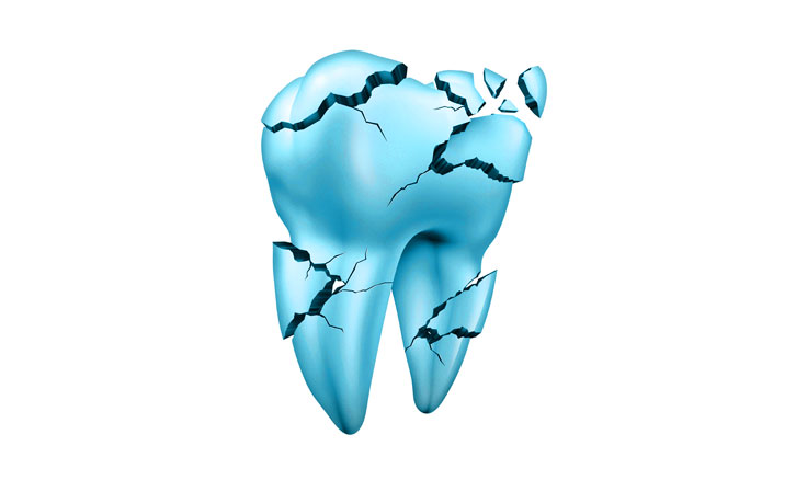 3-D rendering of a blue tooth cracking