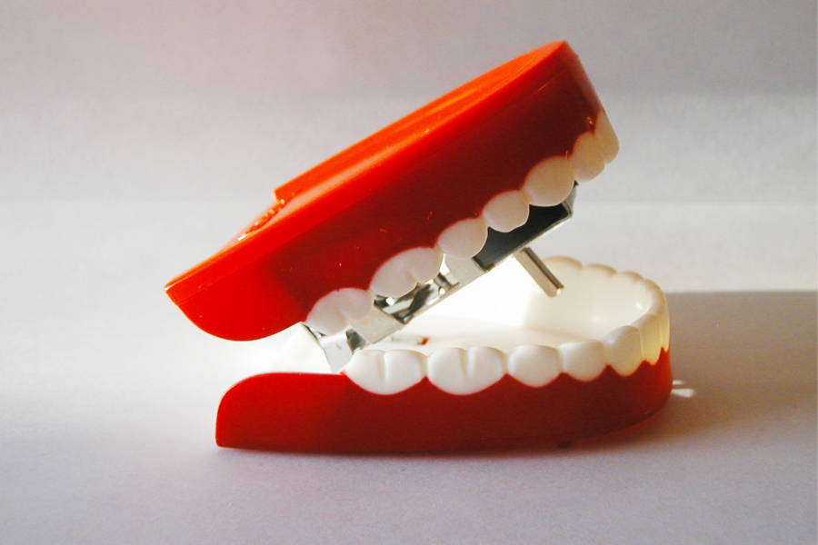 toy plastic wind up chatter teeth