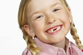 little-girl-smiling-missing-teeth