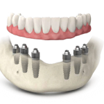 full-arch-on-6-implants
