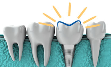 dental-implants-with-dhd-logo