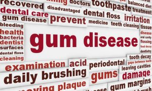 words related to gum disease in red font