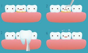 Restore your smile with veneers illustration