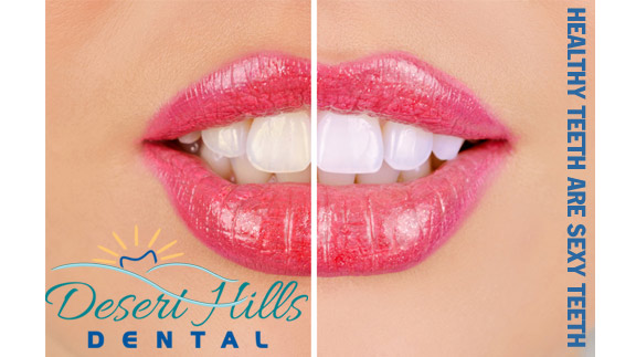 close up of before and after teeth whitening
