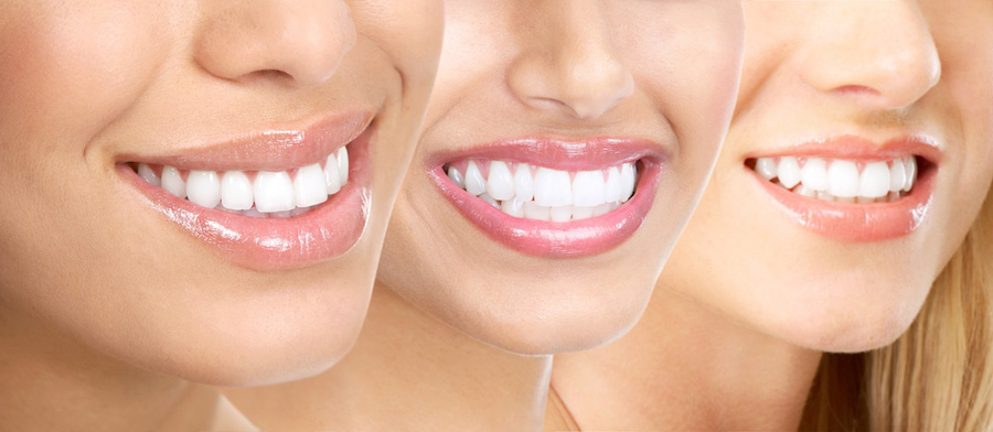 three restored white smiles of women close up