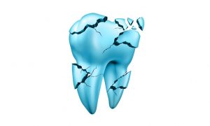 We Can Repair Your Chipped Tooth