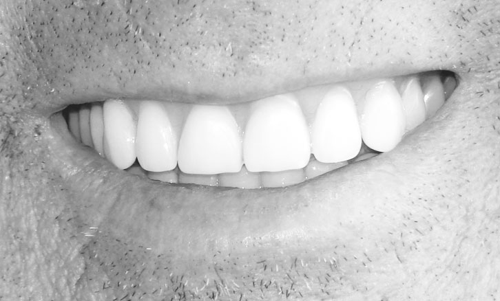 black and white close up of man with veneers smiling