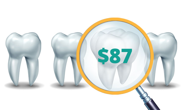 "Four teeth with their roots showing with ""$87"" displayed on one tooth"