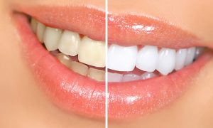 before and after split view of yellow to white teeth